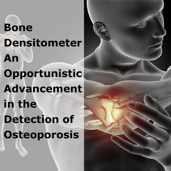 Bone Densitometer: An Opportunistic Advancement in the Detection of Osteoporosis